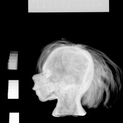 Röntgenbild av miniatyrhuvud från sidan